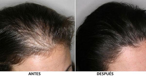 La máscara para la densidad de los cabello sobre el aceite de bardana