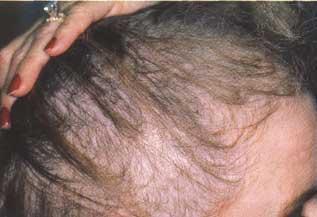 Los champúes hormónicos de la caída de los cabello